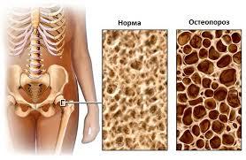 остеопороз 10
