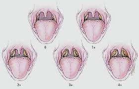 аденоиды 5